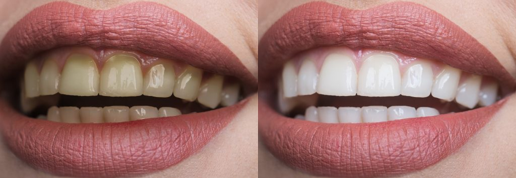 Read more on 5 Common Myths About Teeth Whitening